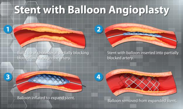Diagram showing stent with balloon angioplasty in human Free Vector