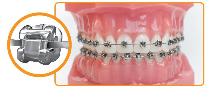 Bạn có biết nguyên nhân nào khiến niềng răng thất bại