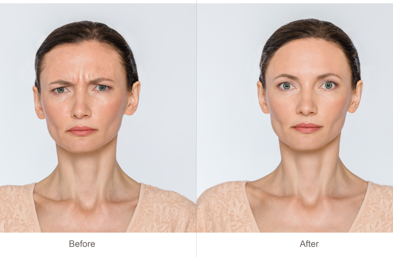 nuceiva results before and after for frown lines