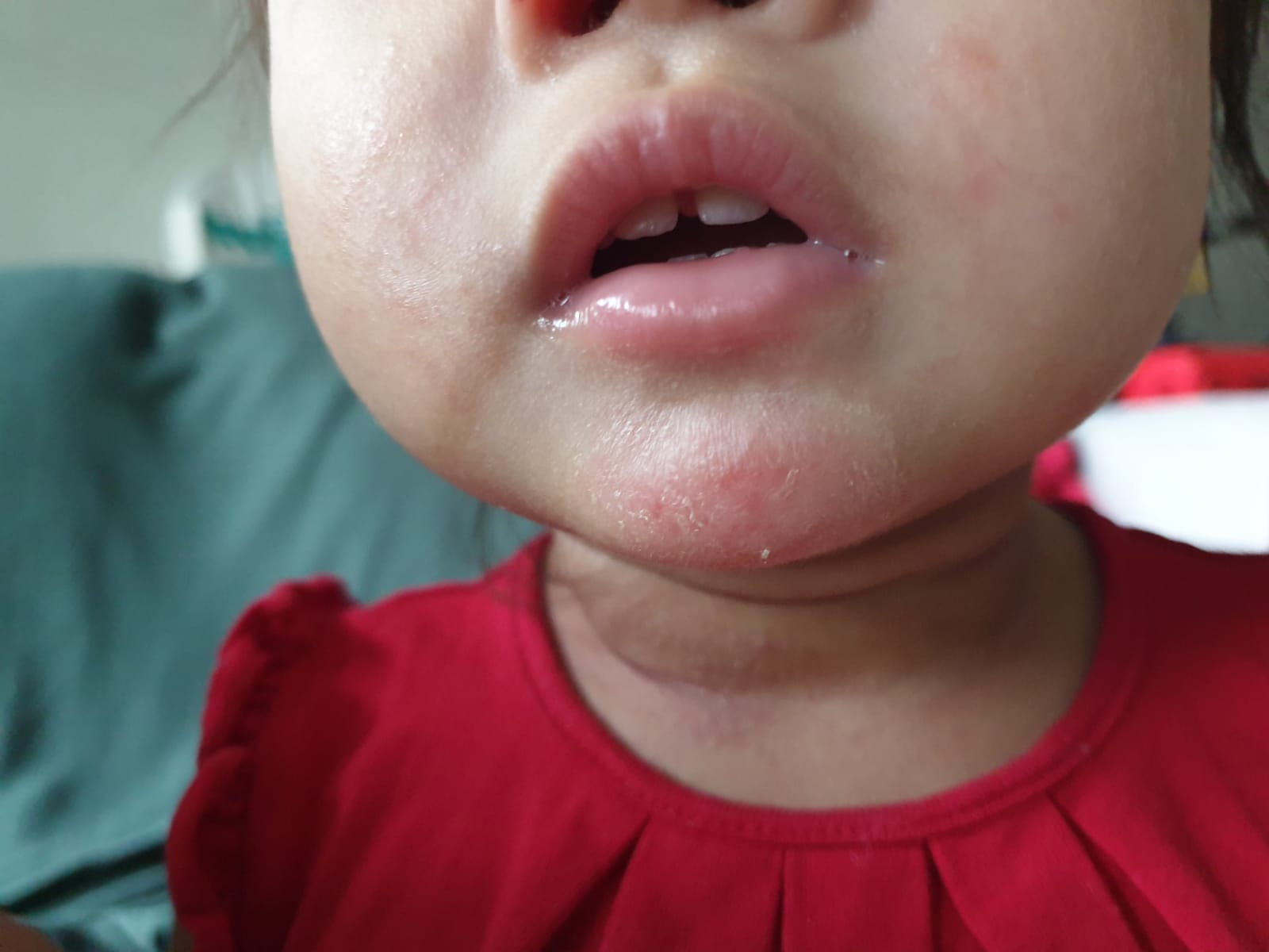After 3 days: Baby's eczema wound has closed up; less redness