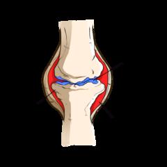 Dog Arthritis and Cartilage