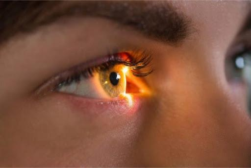 Có thể bạn chưa biết bệnh hắc võng mạc trung tâm thanh dịch - Bệnh Viện Mắt  Quốc Tế DND - 128 Bùi Thị Xuân HN