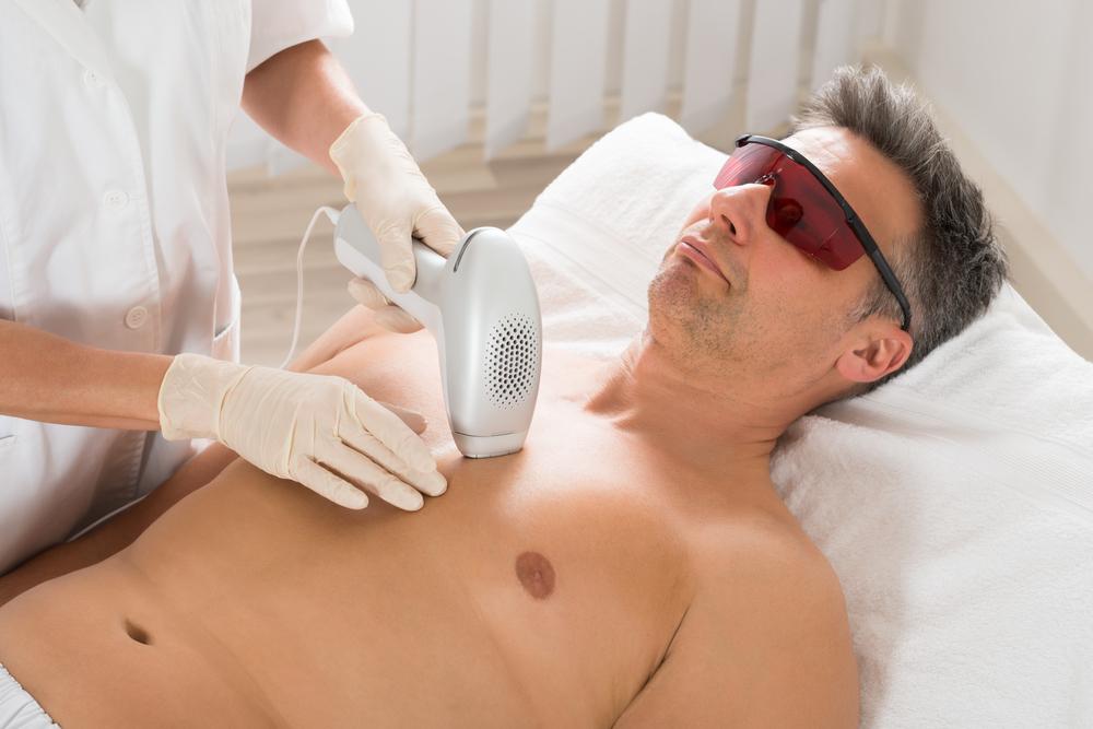 lazer epilasyon uygulaması