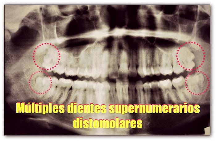 Pdf m ltiples dientes supernumerarios distomolares ovi for Multiples de 6