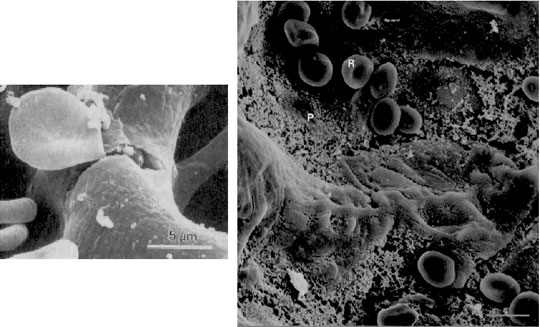 Stress failure of the pulmonary capillaries. Left: Red blood cell emerging from a rupture of the blood-gas barrier into the alveolar space of a rabbit lung [8]. Right: Exercise-induced pulmonary hemorrhage in the alveolar space of a pony lung [5]. R, red blood cell; P, proteinaceous material. Bar, 5 microns.