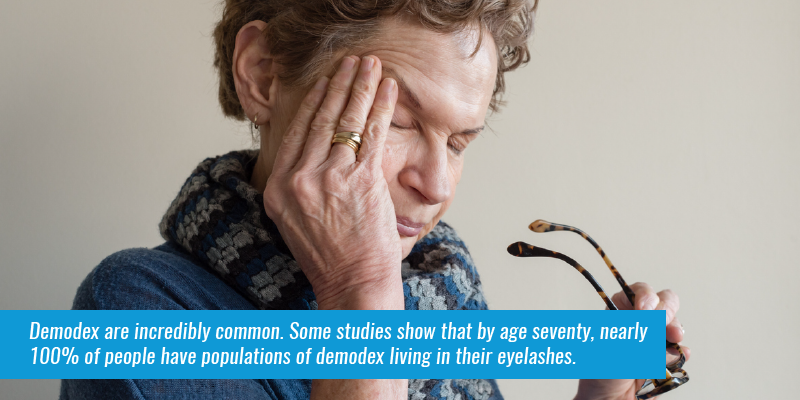 Demodex are incredibly common. Some studies show that by age seventy, nearly 100% of people have populations of Demodex living in their eyelashes.
