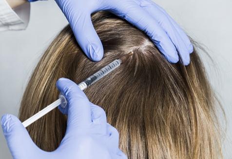 Cấy tóc là một phương pháp hữu hiệu để điều trị rụng tóc