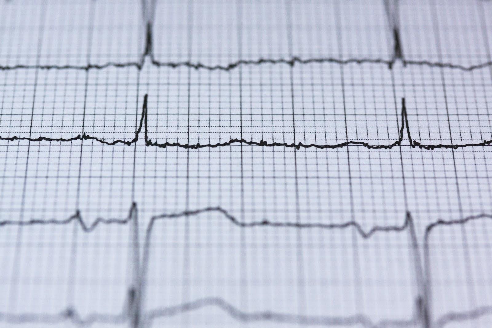 EKG readout