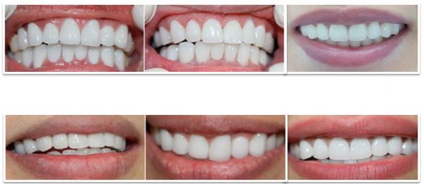 Giá răng toàn sứ bao nhiêu - Bảng chi phí update T8 1