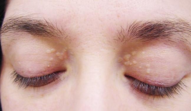 Ban vàng quanh mí mắt của bạn