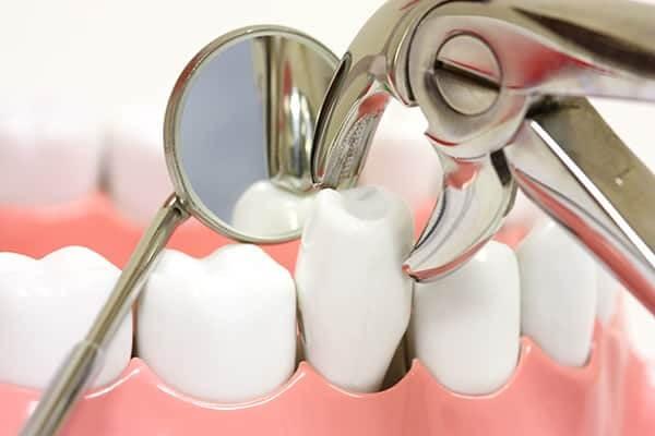 Tác hại của việc nhổ răng khôn không đúng cách – Nha Khoa Bally