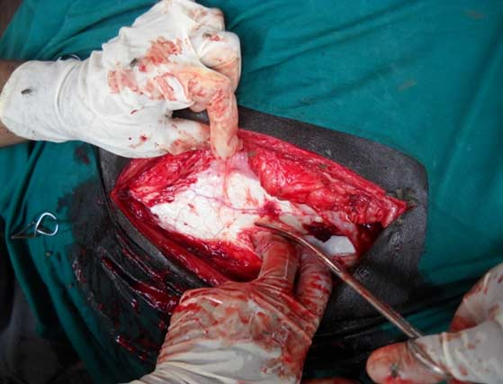 Incison of the peritoneum which is visible as a glistening white membrane.