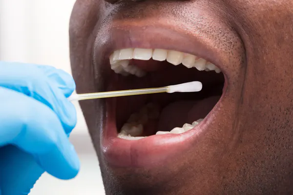 Cheek-swabs are one way to ensure accurate testing without using a blood sample.