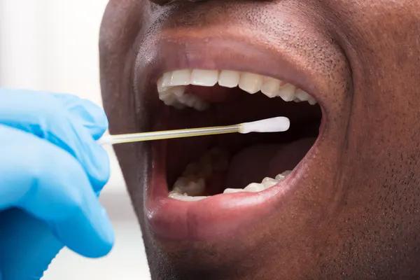 مسحات الخد هي إحدى الطرق لضمان إجراء اختبار دقيق دون استخدام عينة دم.