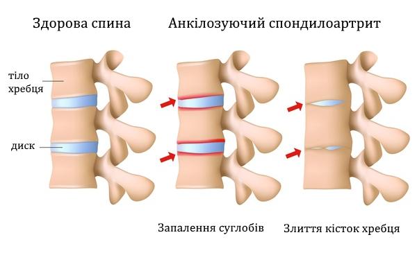 https://tvoie-zdorovia.com.ua/images/likyjemo/ankilozuyuchyj-spondyloartryt.jpeg