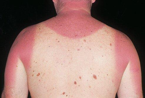 Picture of acute sunburn