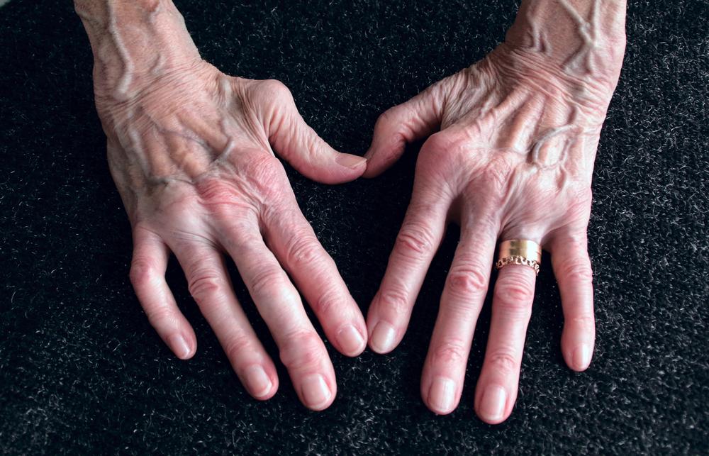 Atlas identificou genes que causam artrite reumatoide e outras doenças autoimunes e autoinflamatórias. (Fonte: Shutterstock/Eva Almqvist/Reprodução)
