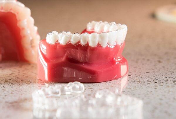 Niềng răng tháo lắp và những ưu điểm nổi bật - Nha khoa Bally