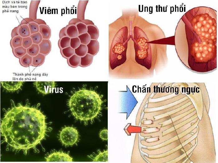 Nguyên nhân của bệnh tràn dịch màng phổi