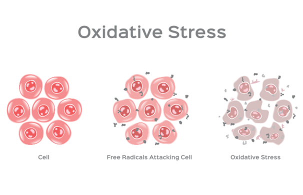 Causes of Oxidative Stress