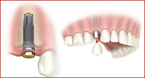 Thời gian cấy implant mất bao lâu tại Nha Khoa Bally 1