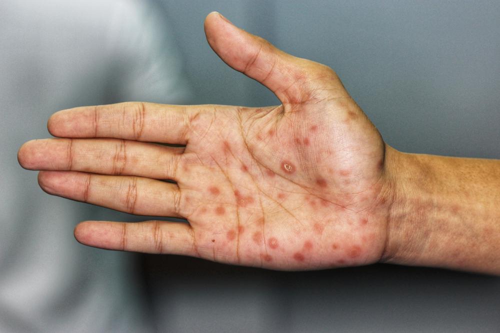 O principal sintoma da sífilis secundária é o aparecimento de lesões na palma da mão. (Fonte: Shutterstock)