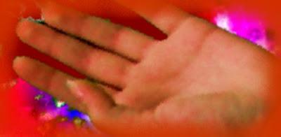 vörös foltok húzódnak az ujjakon