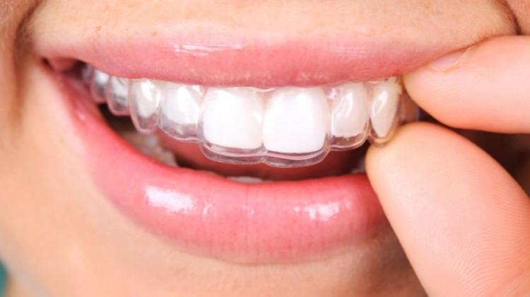 Niềng răng tháo lắp có đắt không? Bác sĩ Bally tư vấn 1