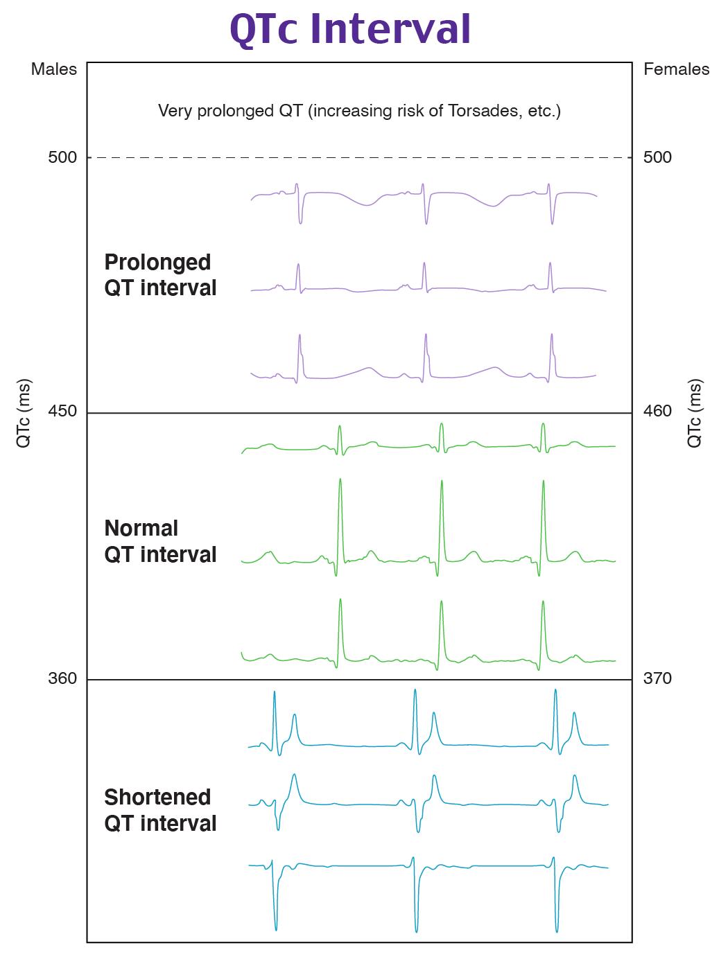 QTc interval