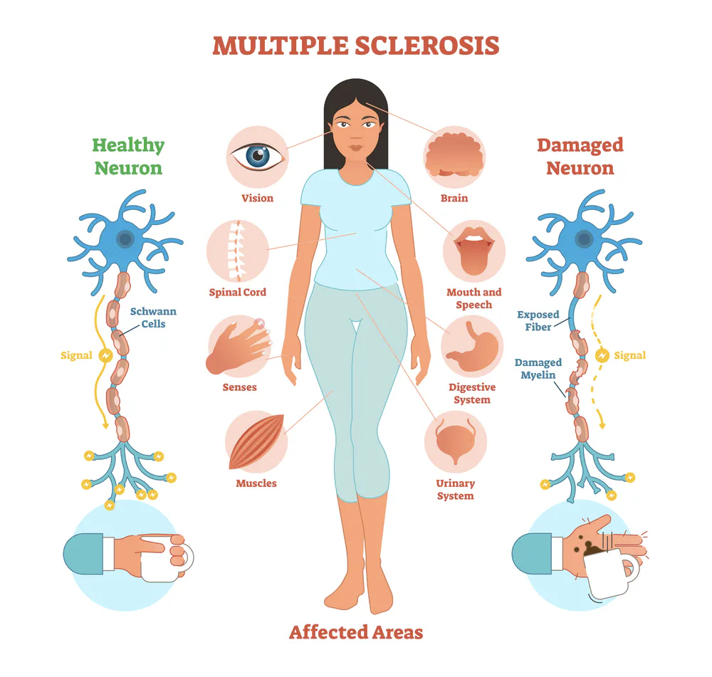 Summary of Affected Areas Impacted By Multiple Sclerosis