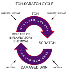 itch scratch cycle.png