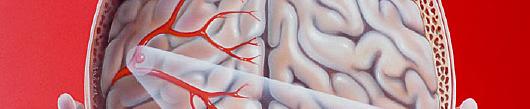 Možganska anevrizma: ukrepajte, preden bo prepozno!