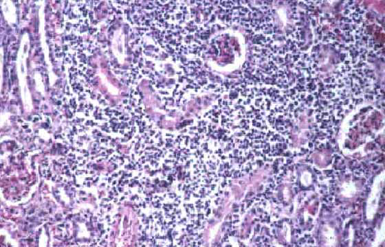 Acute-subacute interstitial nephritis; microscopic appearance. L. canicola infection (H&E stain, x25).