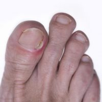 nail bacterial infection