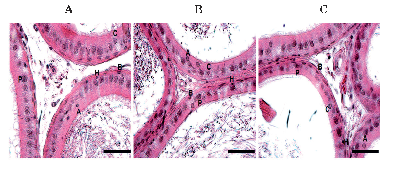 Photomicrographs of cross sections depicting: A) caput, B) corpus, and C) cauda of the rat epididymis. Different cell types can be seen, in which basophils and acidophils are noted as well. Each letter represents a cell type: P: major, B: basal, A: apical, C: clear, and H: halo (H-E, bars and original magnification: 500 μm and x400).
