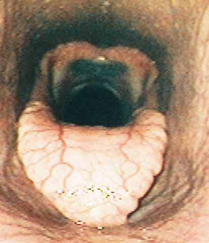 Endoscopic view of the normal larynx showing maximal and symmetrical abduction of both arytenoids. Note: Maximal abduction is sustained during exercise.