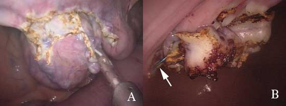 Intra-operative photograph of ovariectomy using ultrasonic cutting coagulating device. A. During procedure, B. After successful amputation of the ovarian pedicle. Note arrow pointing to ligature clip necessary to stop bleeding.