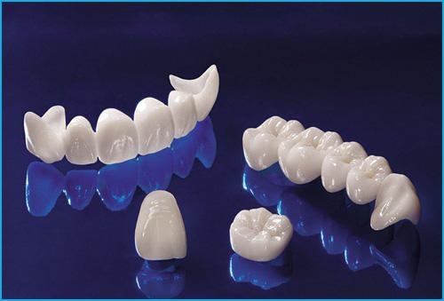 Bọc răng sứ bao nhiêu tiền? Bảng giá cụ thể từng loại răng