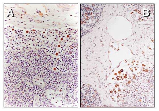 Immunoperoxidase staining of EHV-1 antigen in mononuclear leucocytes within a submandibular lymph node of an infected horse.