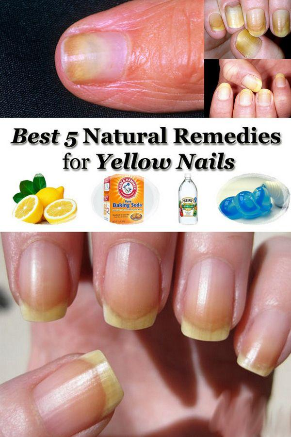 Natural remedies for yellow nails