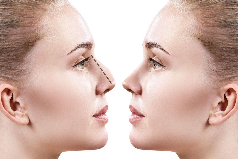 تفاوت قبل و بعد عمل بینی