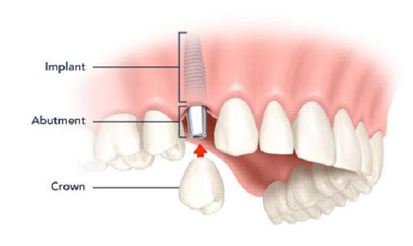 Trồng răng giả Implant mất bao lâu là Nhanh Nhất? [BS Tư Vấn]