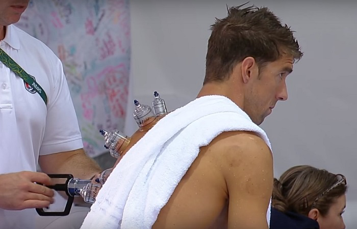 Cupping and Low Back Pain