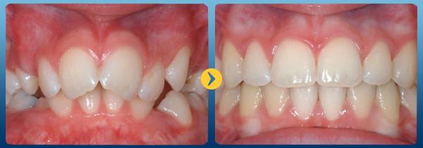 Niềng răng Invisalign là gì? Hiệu quả mang lại như thế nào? 1