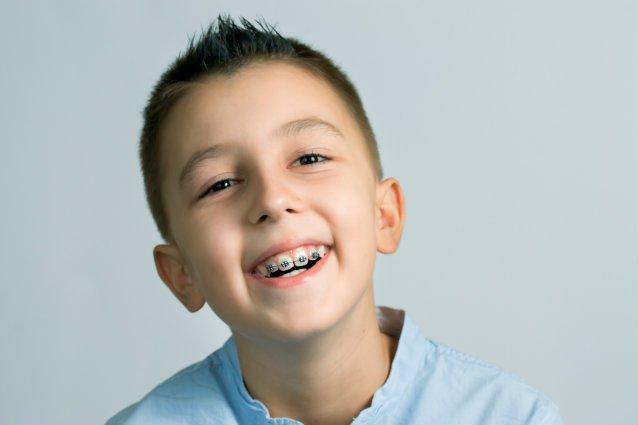 Niềng răng mất bao nhiêu thời gian thì có răng đều đẹp?