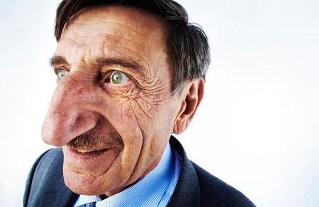 Mehmet Ozyurek – Hidung Terpanjang di Dunia