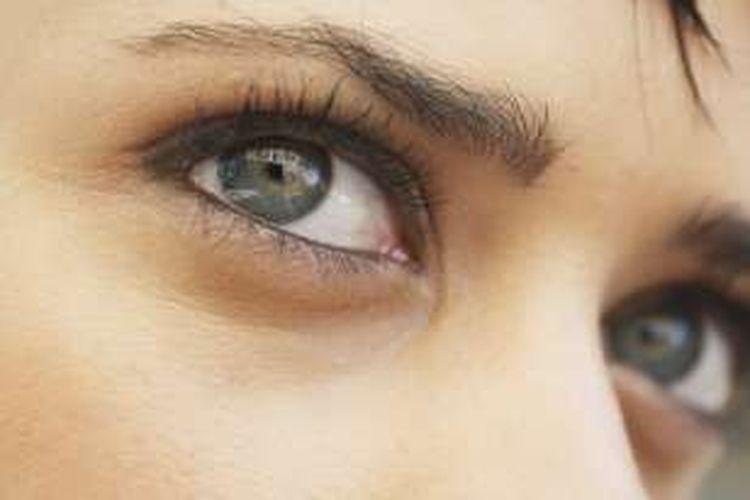 Hasil gambar untuk glaukoma sudut terbuka