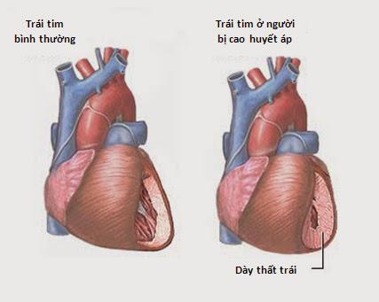 Những bệnh tim mạch dẫn tới suy tim