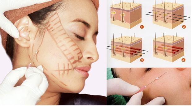 Trong các phương pháp căng da mặt, căng da mặt bằng chỉ, dù nhẹ nhàng nhất nhưng cũng có rủi ro biến chứng đi kèm! - Ảnh 3.