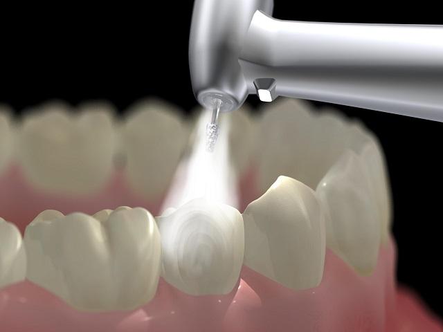 Giải đáp: Cạo vôi răng bao lâu 1 lần, mất bao lâu để hoàn thành?
